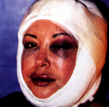 ORLAN, in bandages several days after her surgery